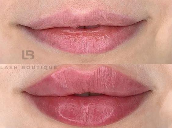 увеличние губ киев